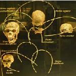 Fossils of Hominid Skulls